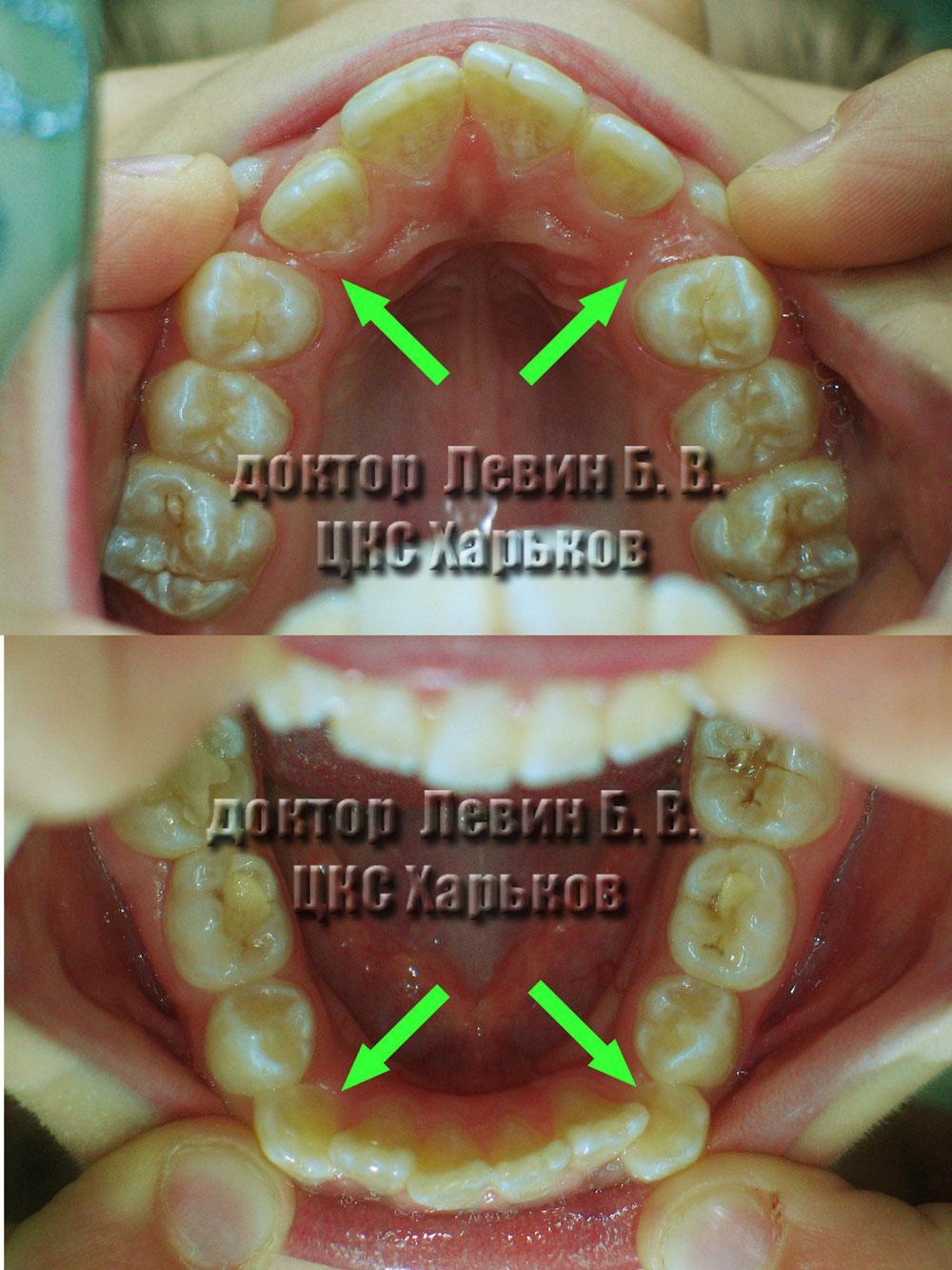 дефицит места зубного ряда ДО брекетов