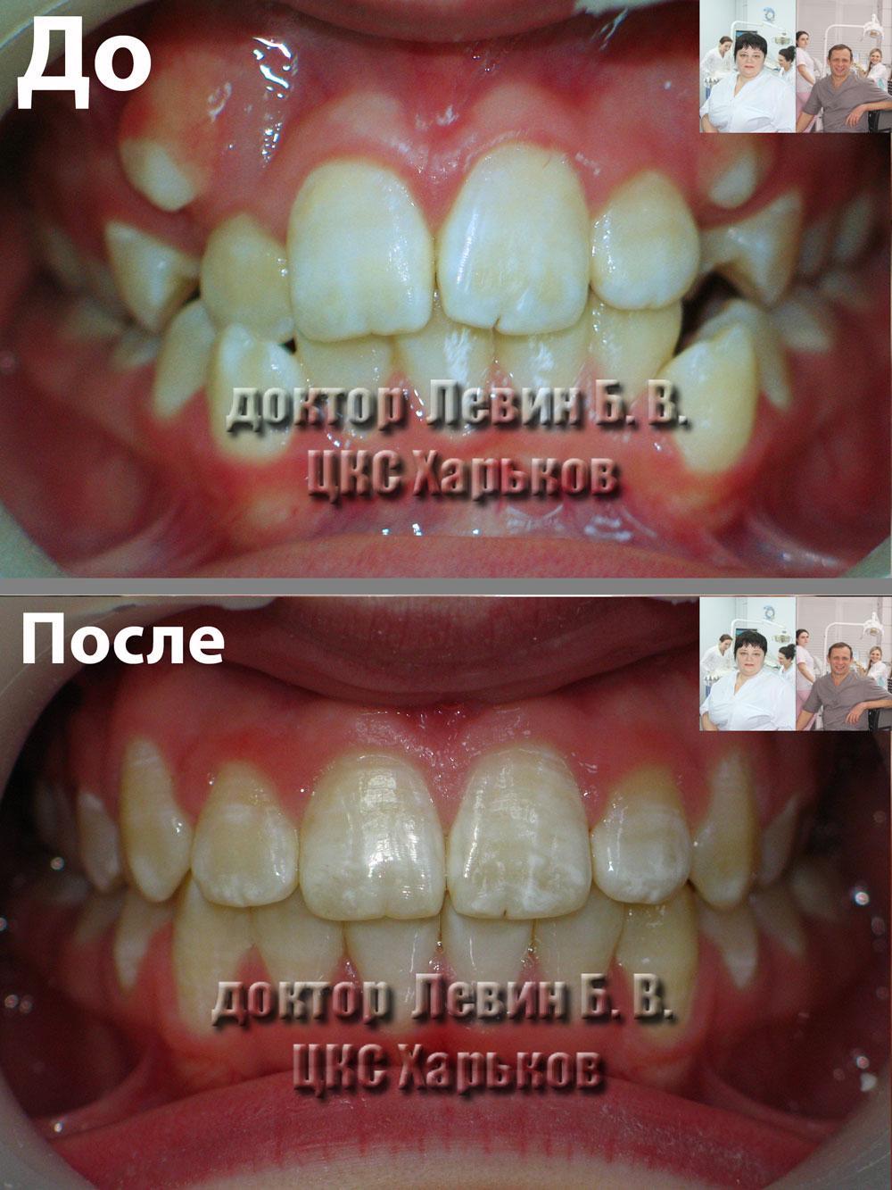 Зубы пациента до и после лечения брекетами