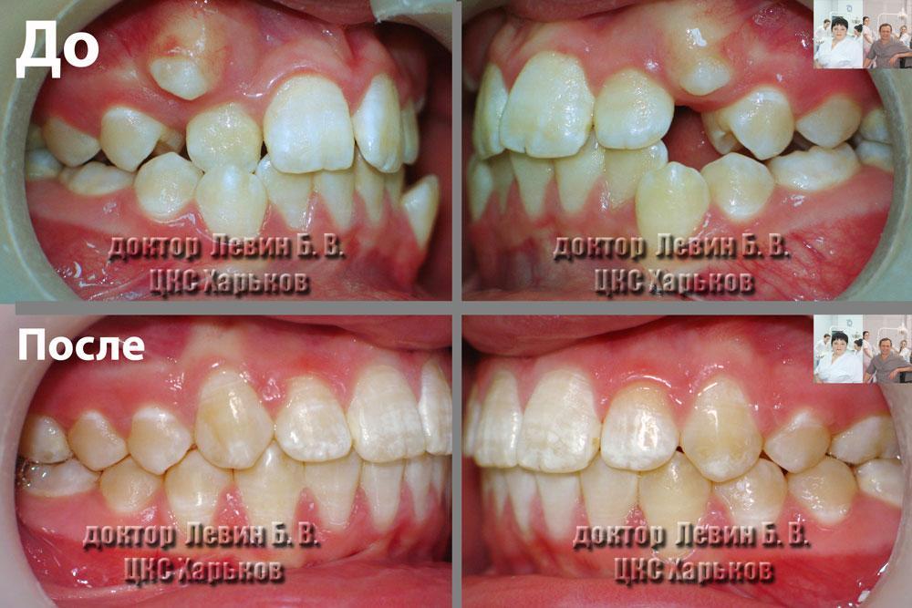 Прикус пациента до и после лечения брекетами