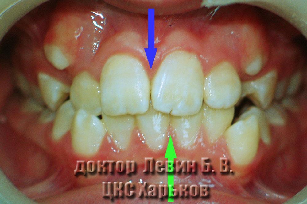 Фото зубов до лечения брекетами. Нарушение средней линии