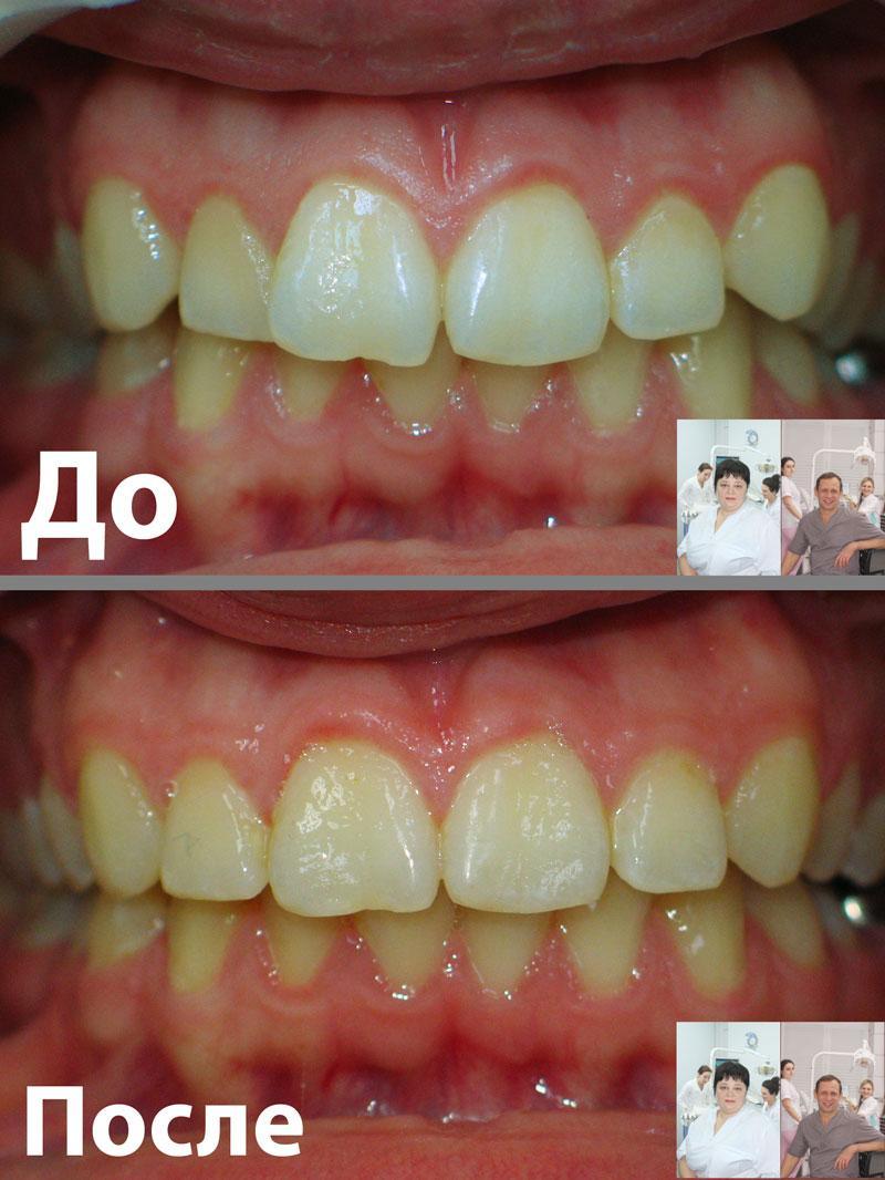 Фронтальное фото зубов ДО и ПОСЛЕ