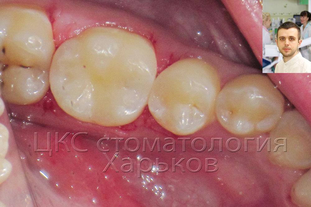 Лечение кариеса в стоматологической клиники Харькова
