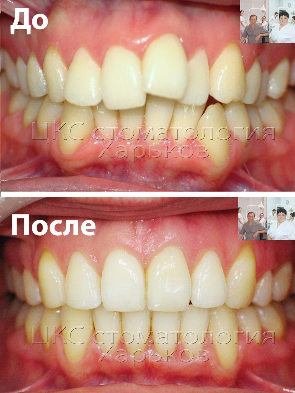 Зубы до и после лечения брекетами в ЦКС