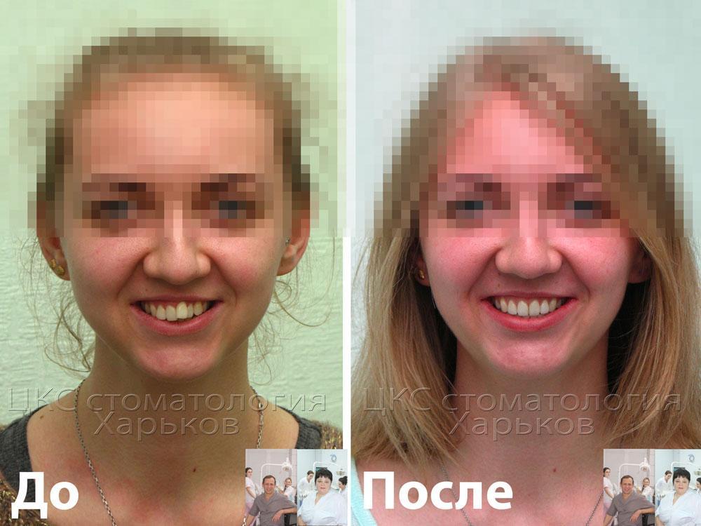 Фотография улыбки пациента до и после лечения брекетами