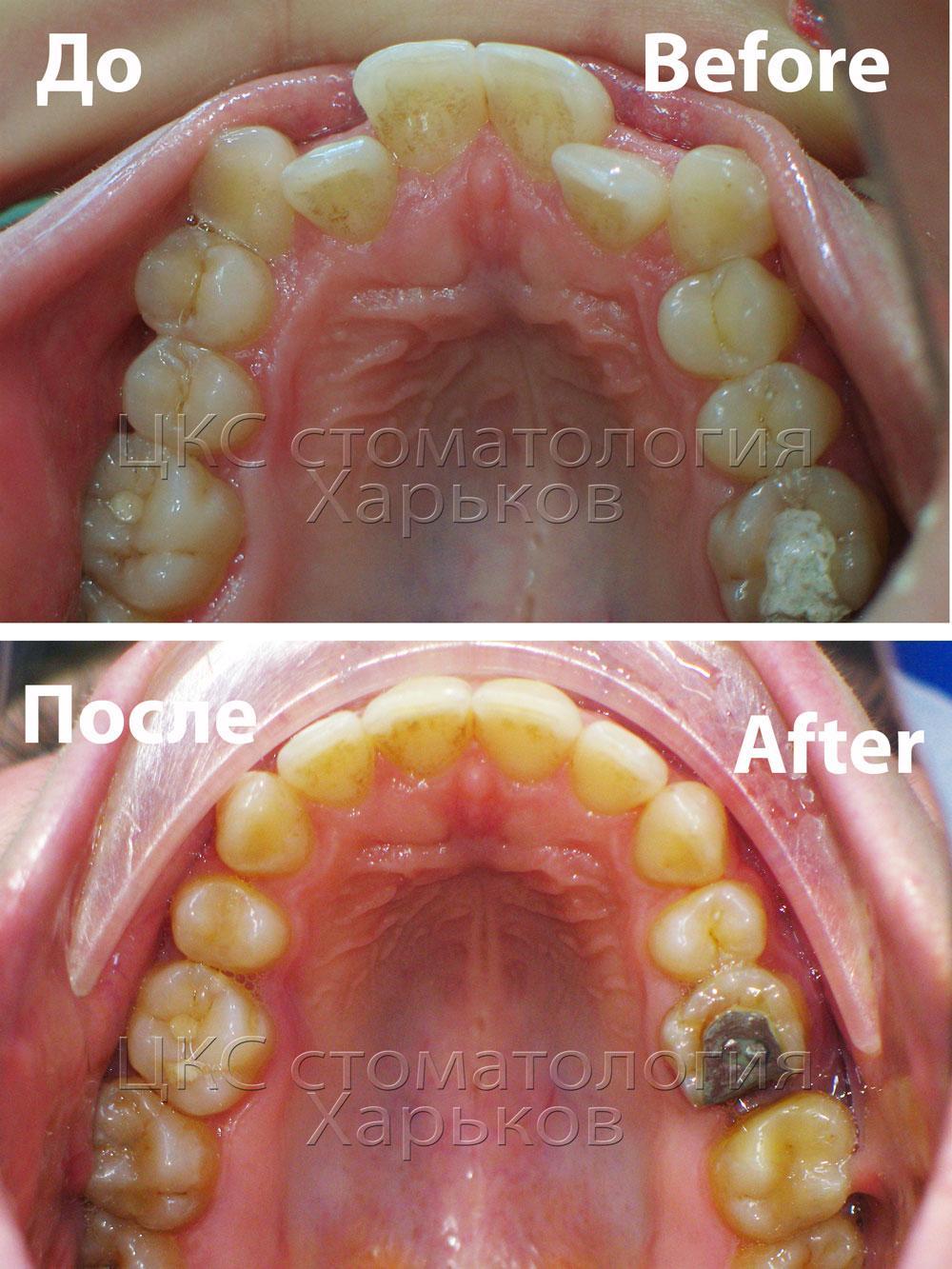 Форма зубного ряда пациента до и после лечения брекетами