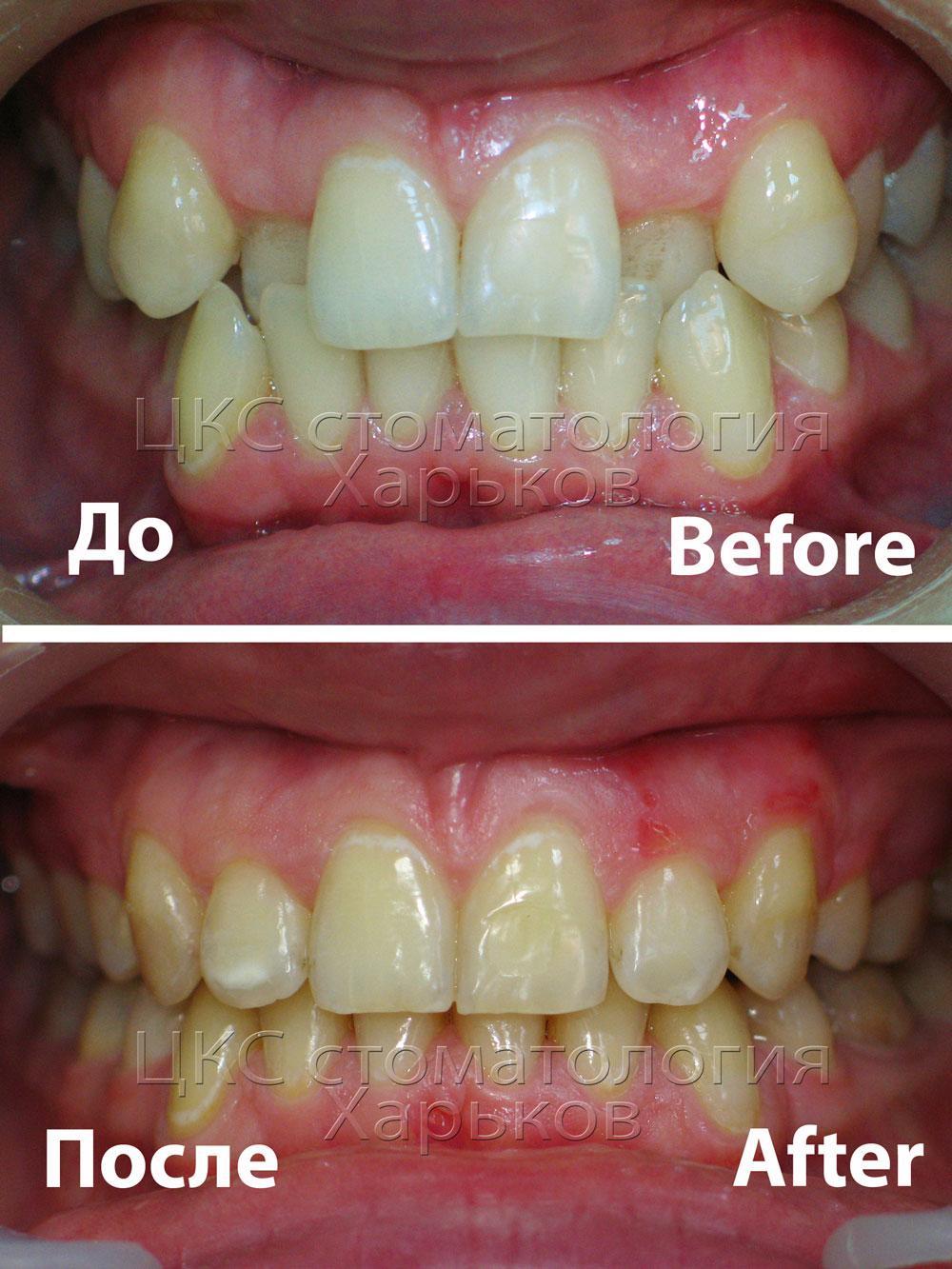 Фото зубов  до и после лечения брекетами