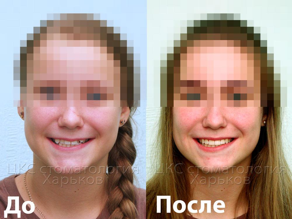 Улыбка пациента до и после лечения брекетами