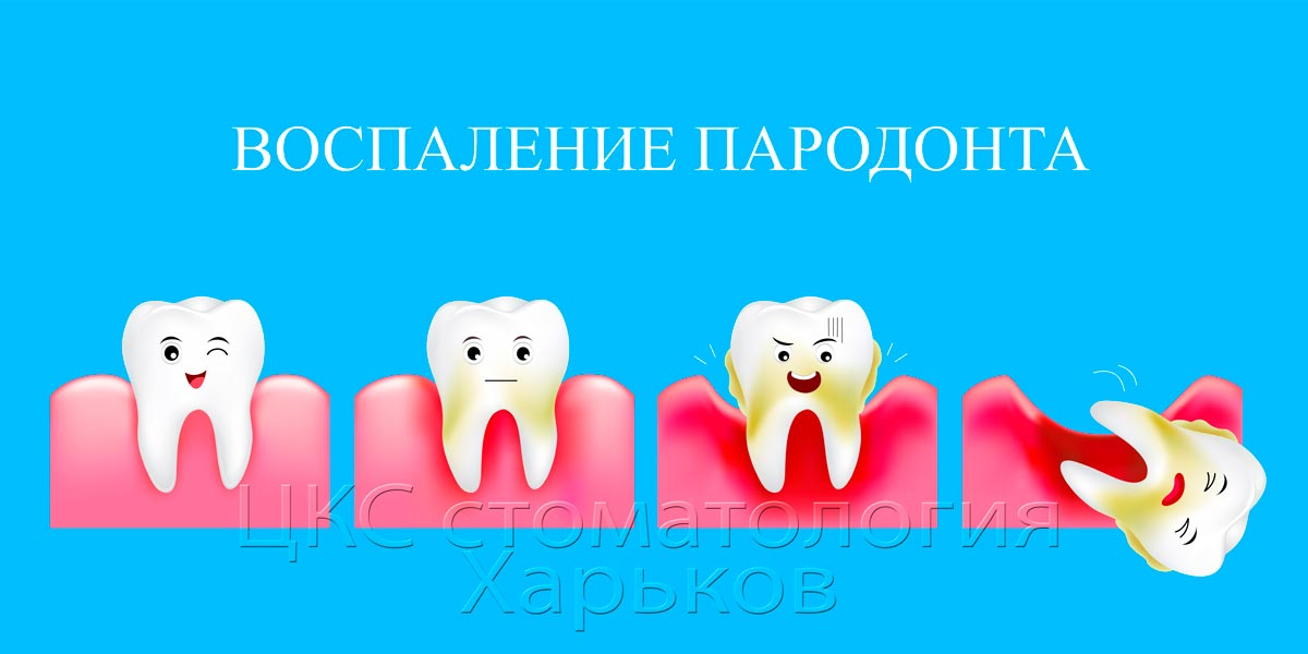 stages of development of periodontal disease