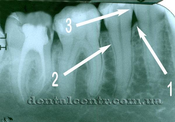 зубы не пораженне заболеванием пародонтит