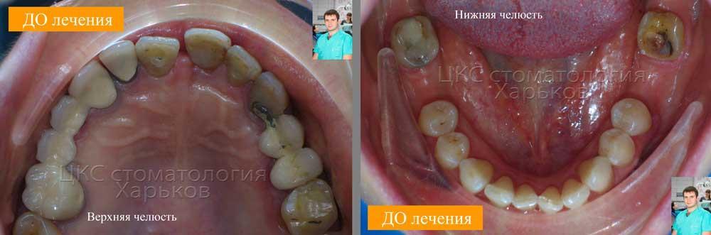 Зубные ряды пародонтит, ДО лечения