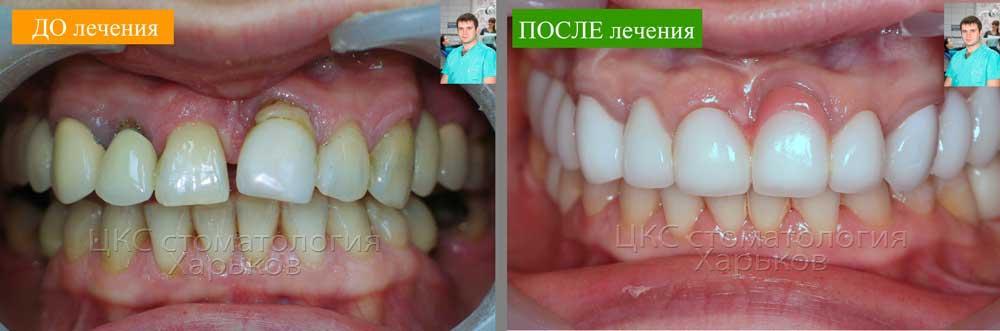 Красивые зубы с применением искусственной десны