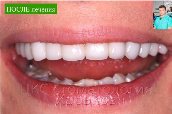 Улыбка результаты стоматологии в Харькове