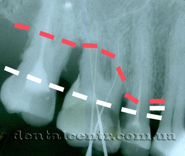 зубов с заболеванием пароднтита изображение