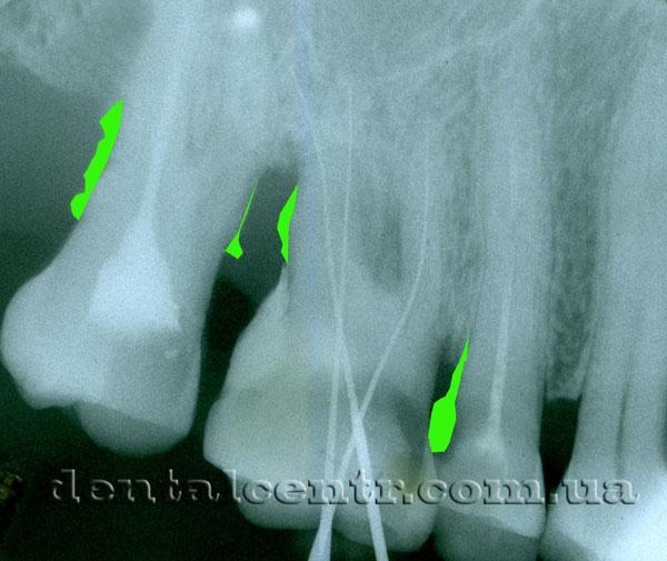 места скопления зубного камня