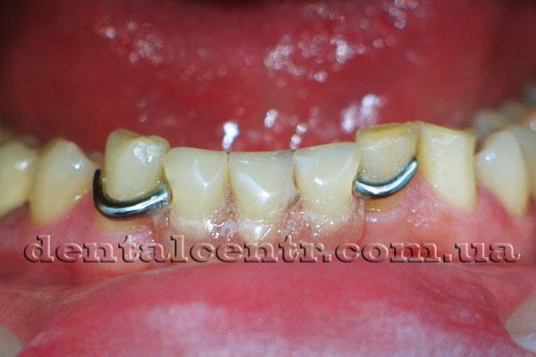 Съемный протез заменяющий недостающие зубы