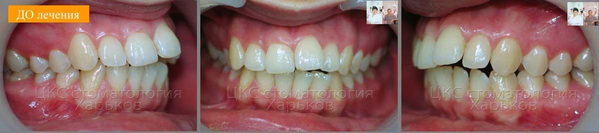 неровные зубы и нарушение прикуса