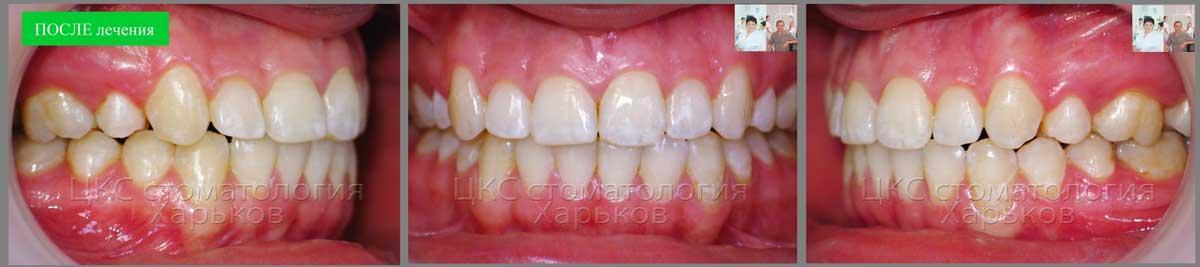 Идеальное положение зубов после лечения