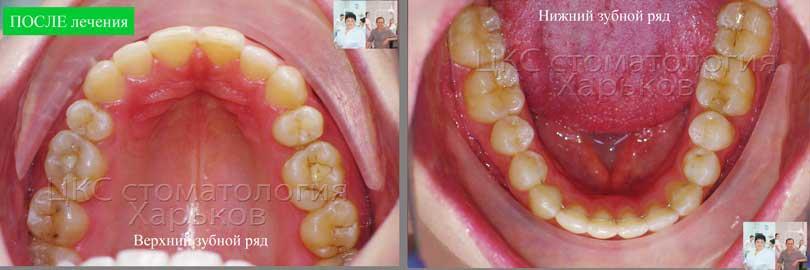 Форма зубного ряда ПОСЛЕ лечения