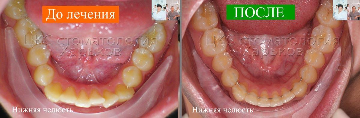 Зубной ряд ДО и ПОСЛЕ