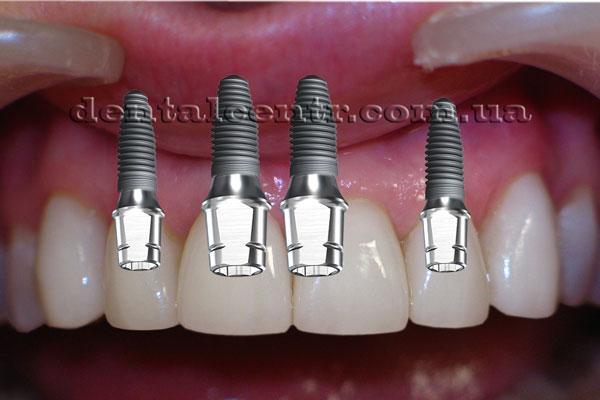 Неверное положение зубных имплантов фото