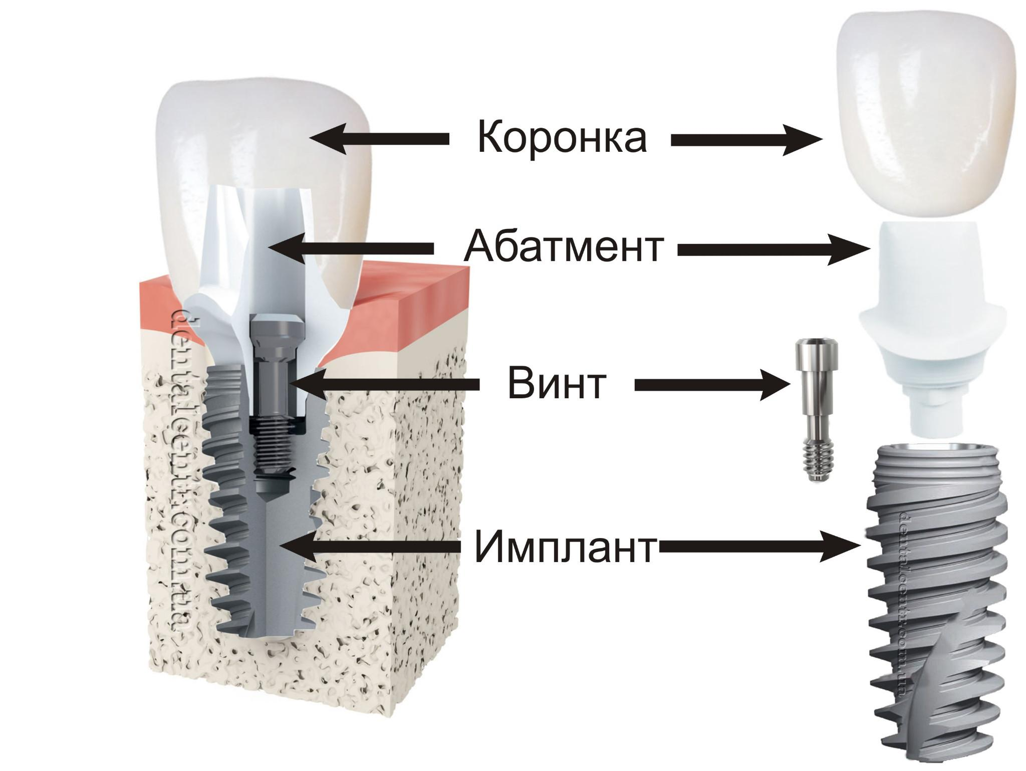 Рисунок структуры зубных имплантов