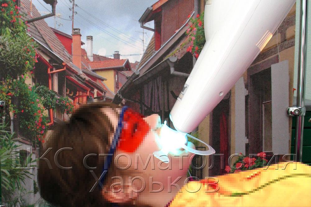 Активация геля при помощи лазерной лампы