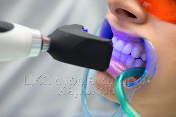 отбеливание зубов в стоматологии Харьков