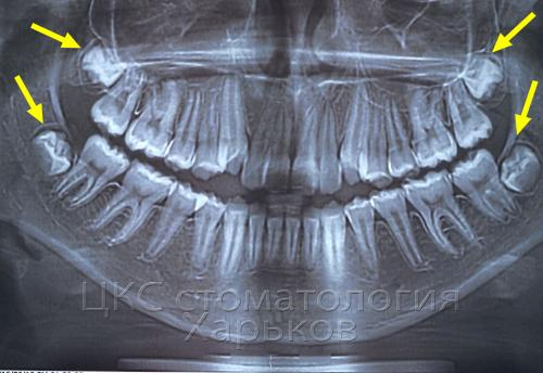Зачатки зубов мудрости на панорамном  снимке