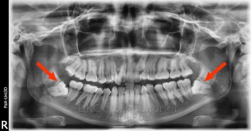 Горизонтально расположенные  зубы мудрости