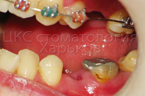 Лечение разрушенных зубов до брекет системы