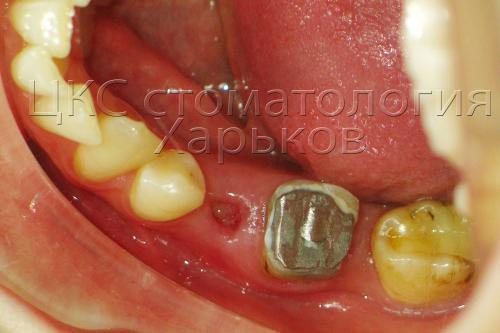 Культевая штифтовая вкладка восстанавливает зуб