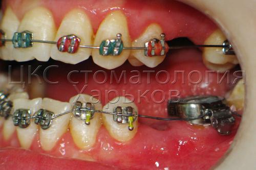 Использование колец для разрушенных зубов