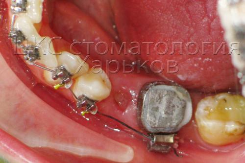 Ортодонтическое кольцо фиксировано на зубе