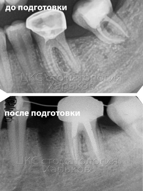 Зуб до и после подготовки к ортодонтическому лечению