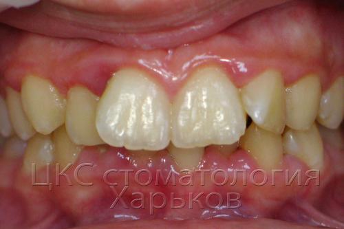 Комбинация: неровные зубы и воспаленная десна