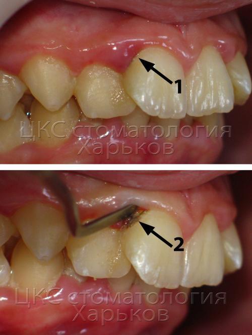 зубные камни - причина воспаления
