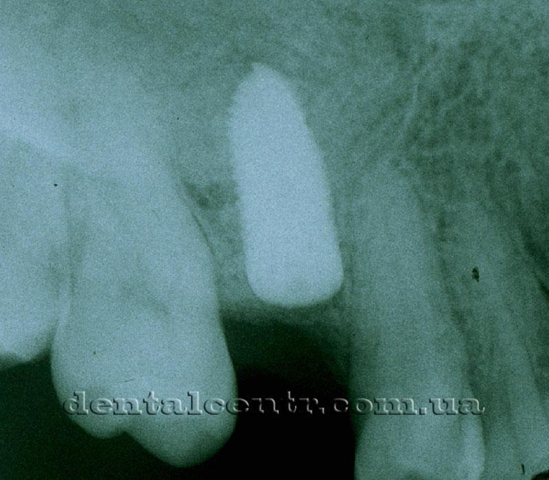 Боковая группа зубов верхней челюсти