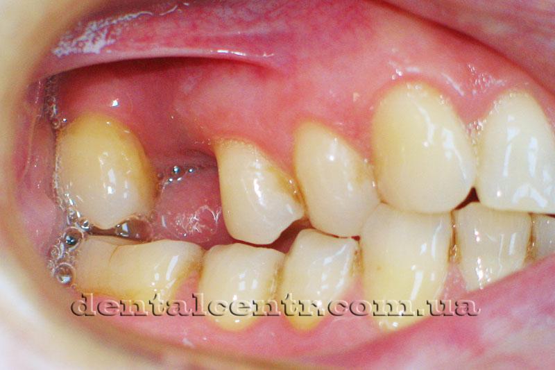Нет верхнего премоляра из-за поломки зубного имплантата