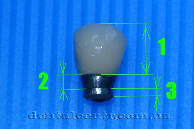 Отломанная часть зубного импланата фото