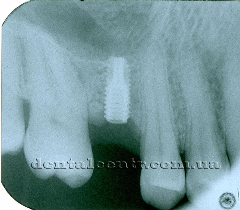 Боковая группа зубов верхней челюсти рентгенограмма