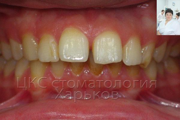 Налет на зуба из-за неправильного прикуса