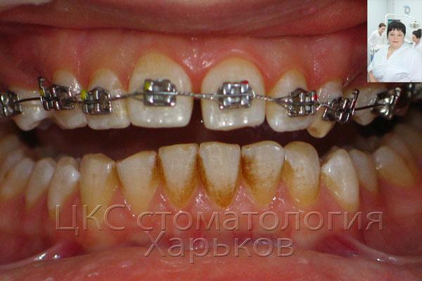 зубы покрыты налетом из-за патологии прикуса