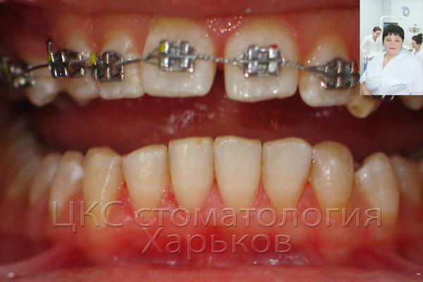 Зубы после проведения профессиональной чистки