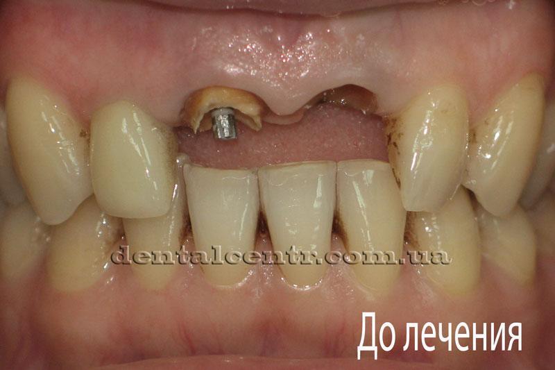 Состояние зубов до проведения протезирования
