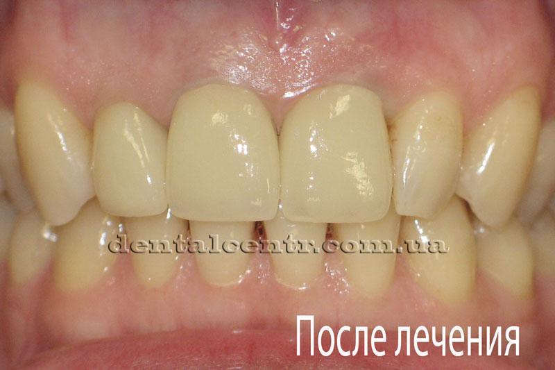 Состояние зубов после процедуры протезирования