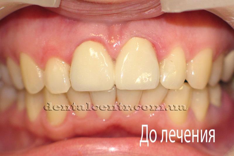 Фотография зубов до протезирования