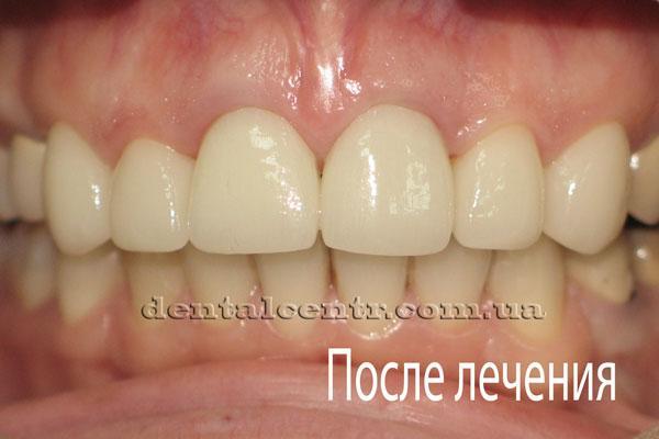 Фотография зубов после протезирования керамическими винирами