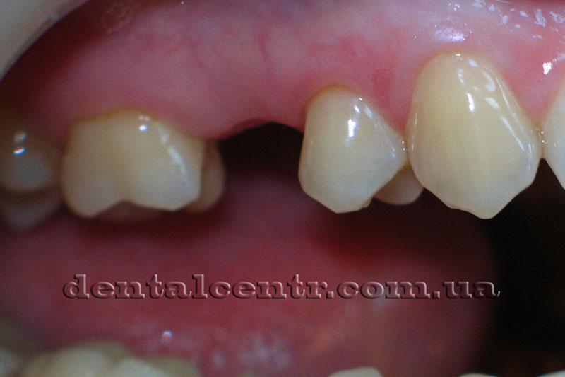 Отсутствует (удален) один зуб. Фото