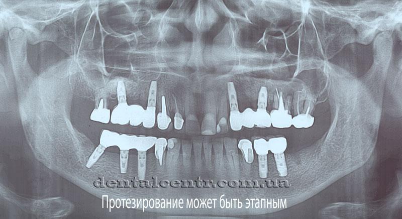 Панорамная рентгенограмма многоэтапной имплантации зубов