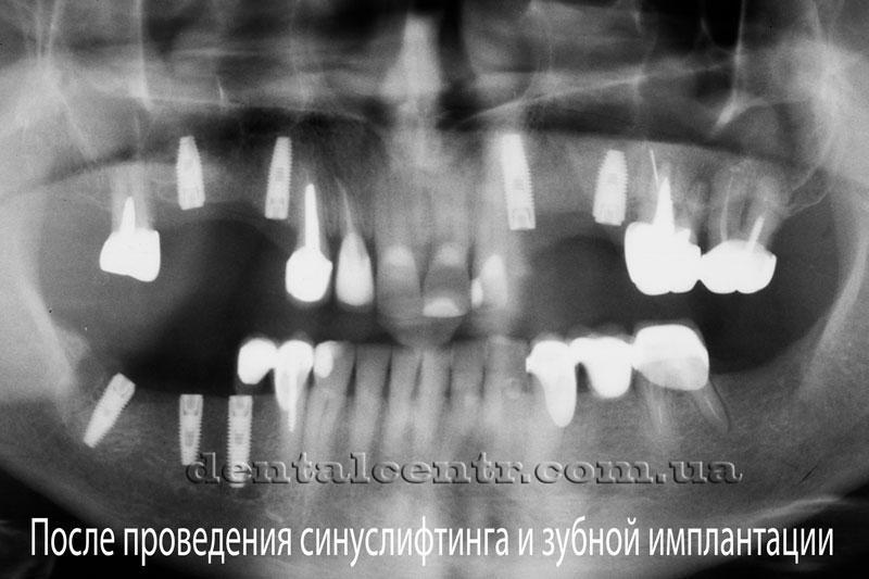 Панорамный снимок после установки зубных имплантатов